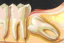 chirurgia-orale: studio spinelli