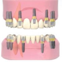 impianti: studio dentistico domenico spinelli