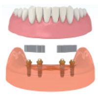 impianti: studio dentistico spinelli