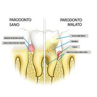 parodonto